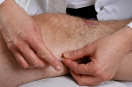 Acupuncture on the knee