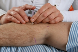 Acupuncturist treating the elbow